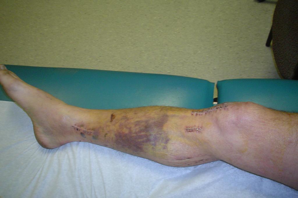 Bone Bruise On Knuckle